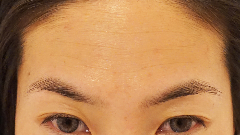 Before SmoothBeauty Laser